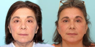 60 y/o Modified Face and Neck Lift Neck Liposuction and Blepharoplasty