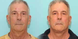 71 y/o Male Neck Lift and Lower Lid Blepharoplasty