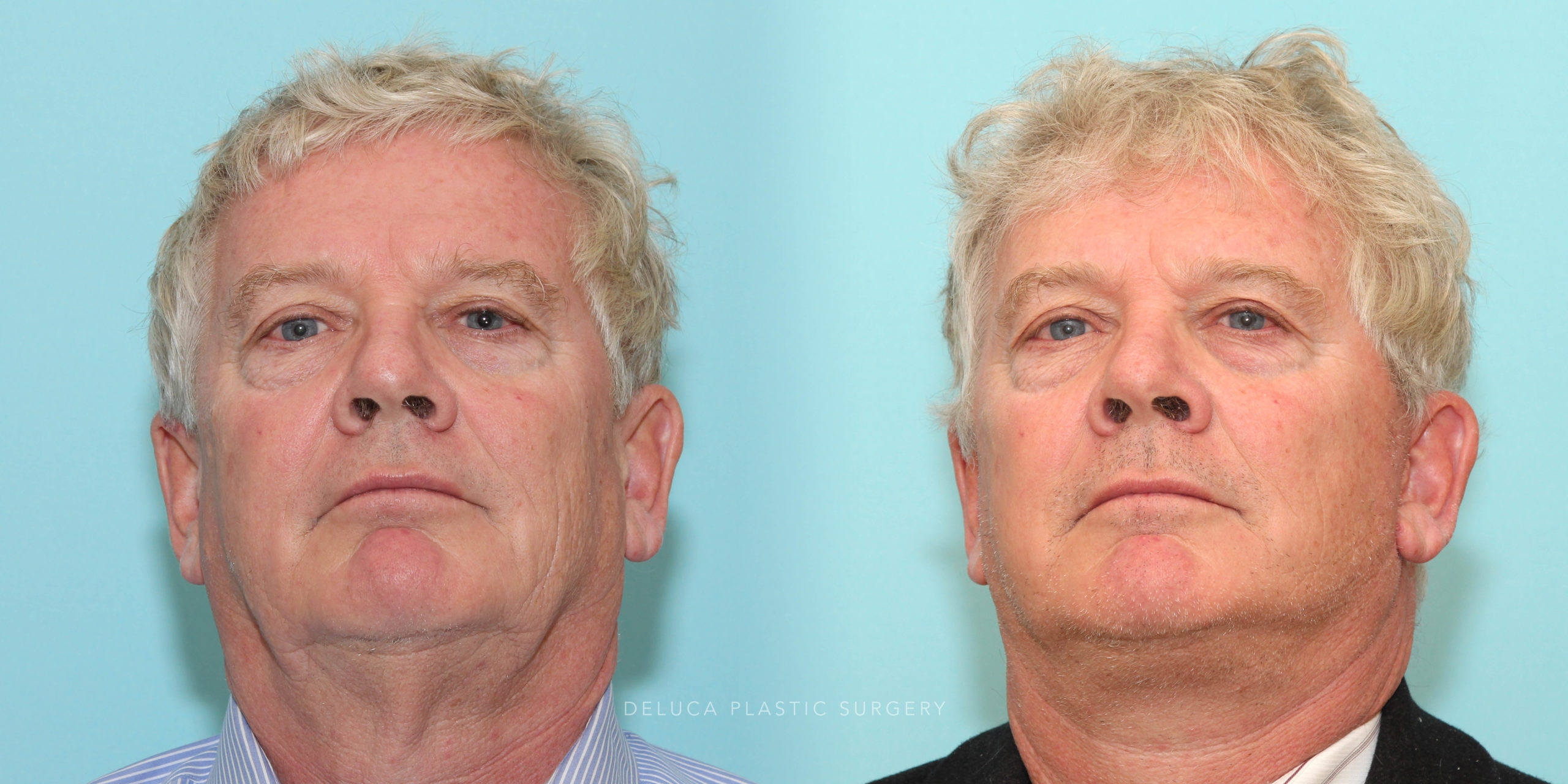 63 y/o Male Modified Face and Neck Lift and Liposuction of The Neck