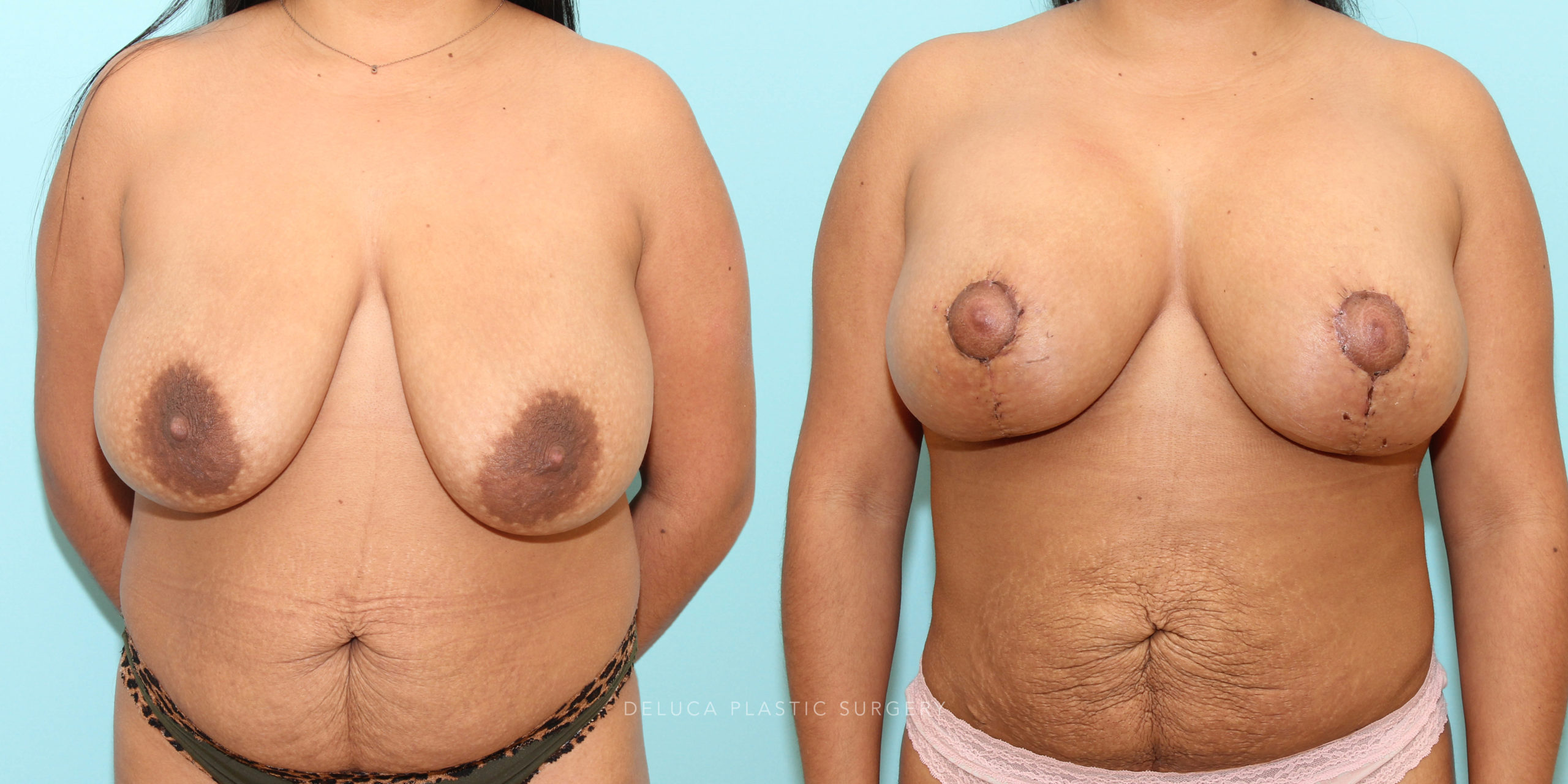 27 y/o Augment and Breast Lift with 275 MP Silicone And Liposuction 360