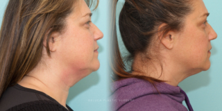 51 y/o Kybella Injections for Neck Fat (2 Treatments)