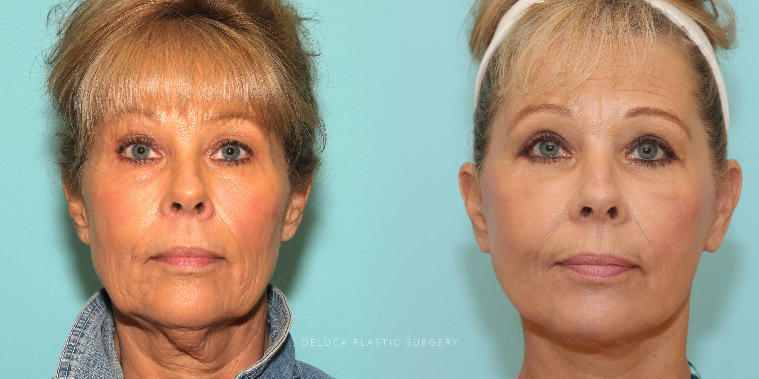 60 y/o Upper and Lower Lid Blepharoplasty