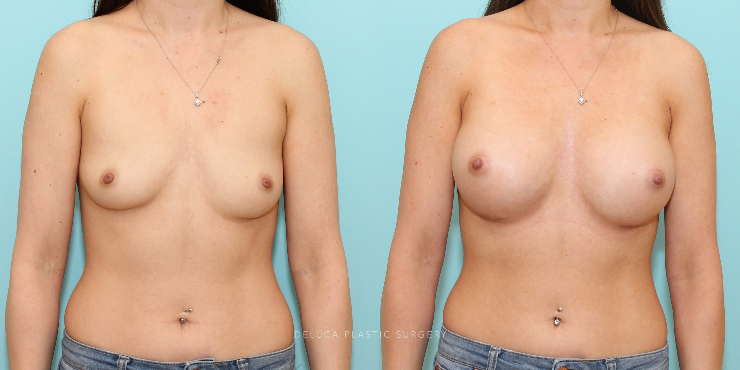 29 y/o Asymmetric Dual Plane Augmentation 300/350 MP Silicone