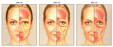 Stages Of Facial Volume Loss in The Thinning Face