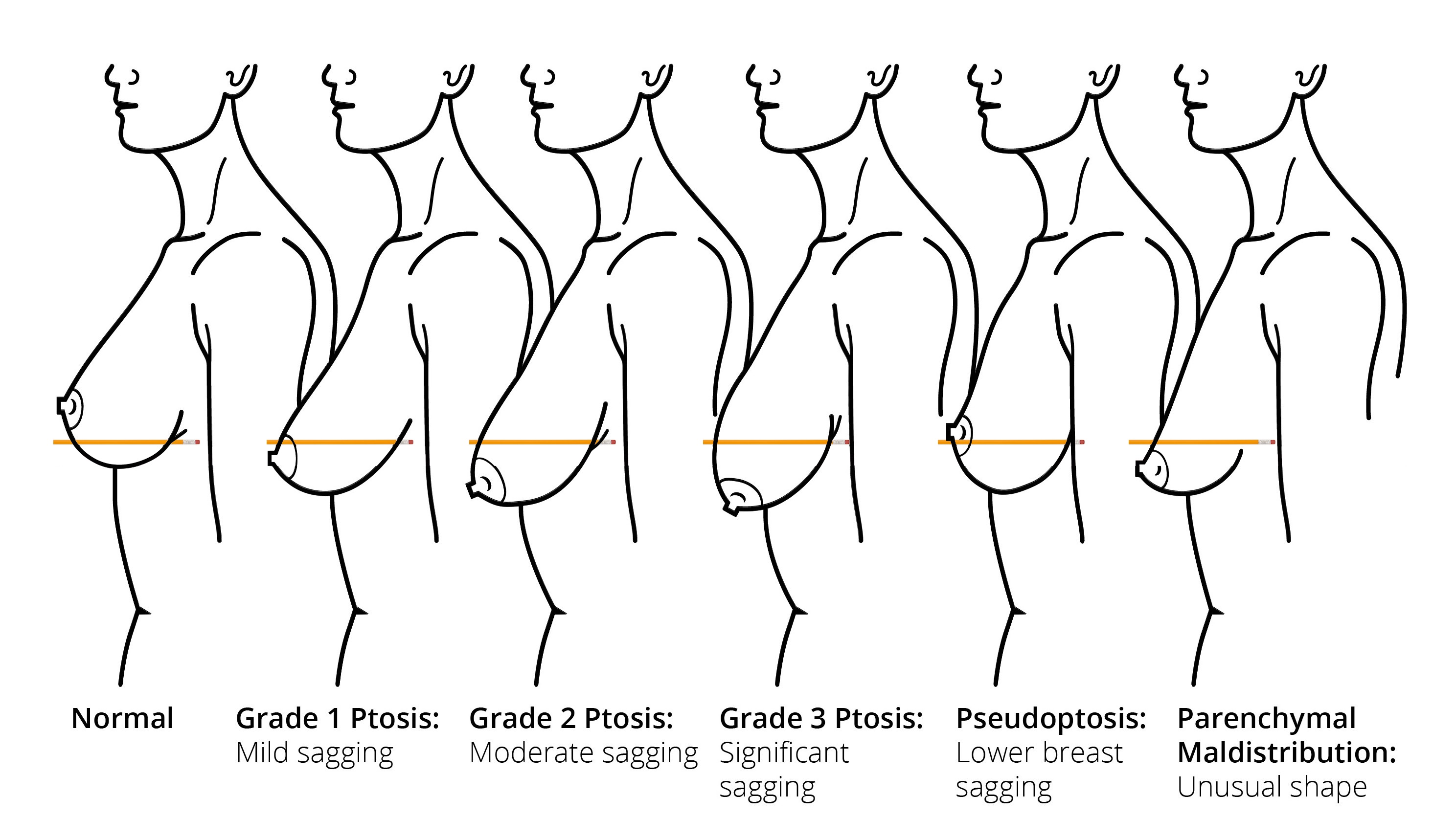 sizes and of shapes breasts Different