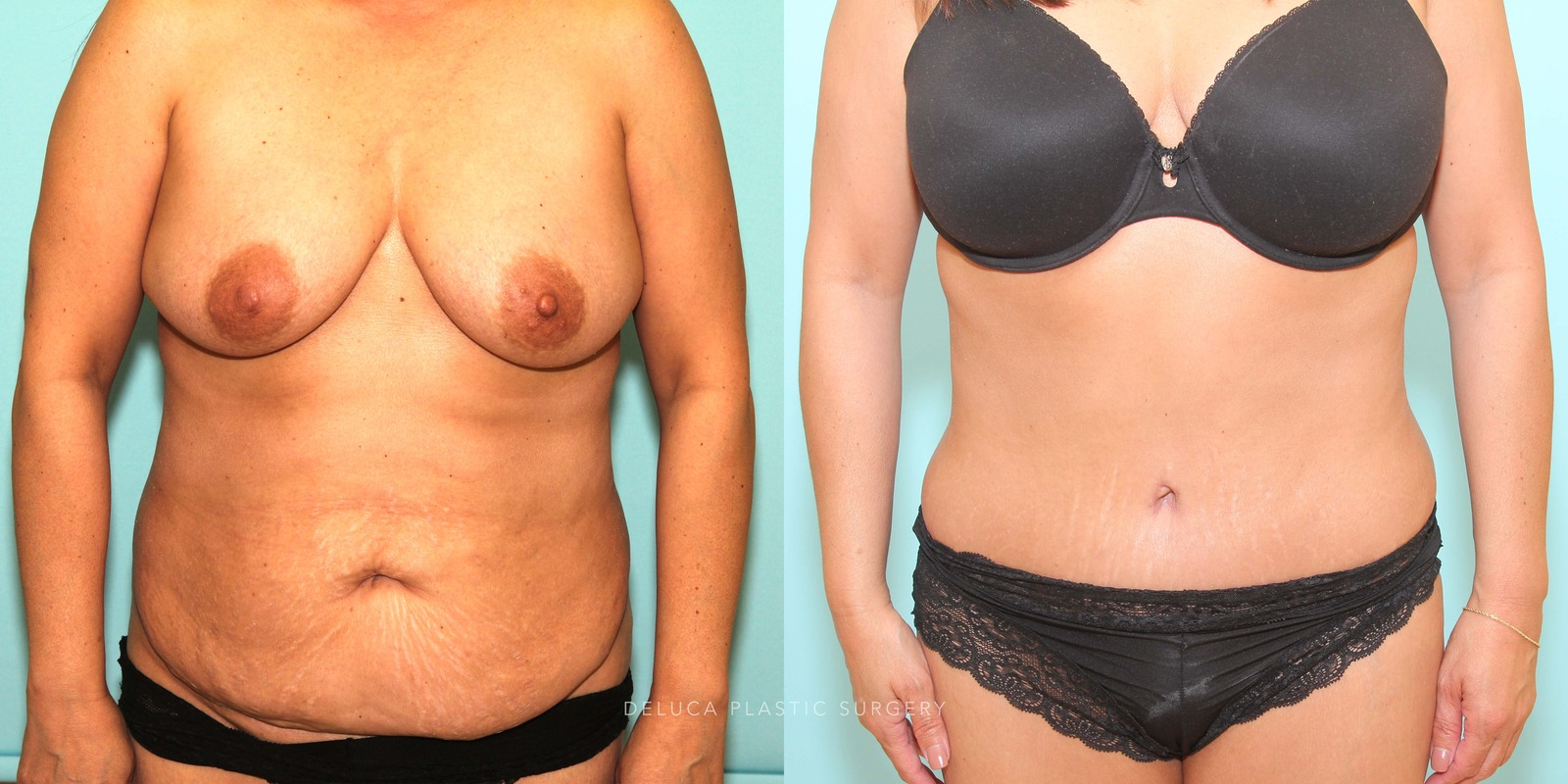 48 y/o Tummy Tuck and Liposuction Abdomen