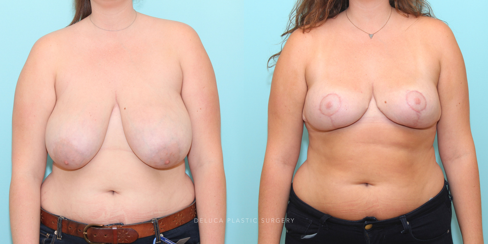 24 y/o Inferior Pedicle Short Scar Wise Skin Pattern Breast Reduction